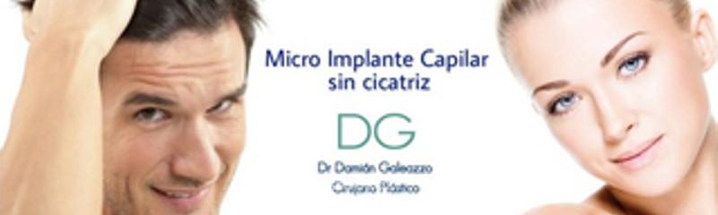 Implante Capilar técnica FUE