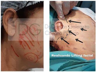 Rejuvenecimiento facial-626540