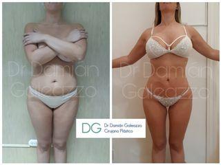 Liposucción Dr  Damián Galeazzo
