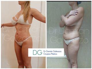 Liposucción HD - Dr  Damián Galeazzo