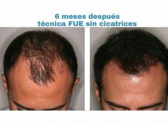Implante capilar - 627370
