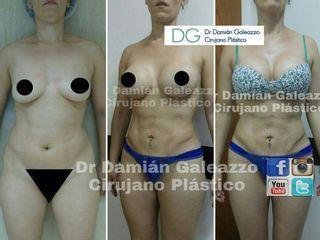 Lipo con marcación suave y aumento mamario