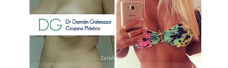 Marcacion abdominal Dr Galeazzo
