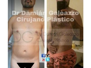 Liposucción con aumento glúteo Dr  Galeazzo