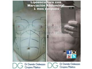 Liposuccion con marcación Dr Galeazzo