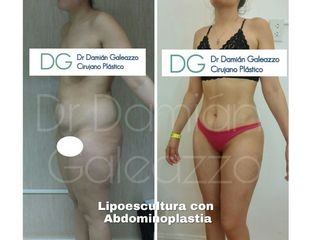 Abdominoplastia con lipoescultura y marcacion de abdomen