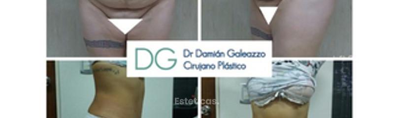 Abdominoplastia con liposucción