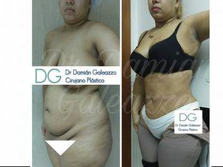 Abdominoplastia con lipoescultura de abdomen y espalda
