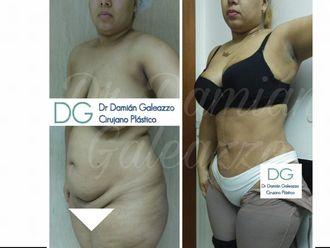 Dermolipectomía - 628179