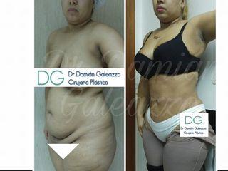 Dermolipectomia dr damian galeazzo