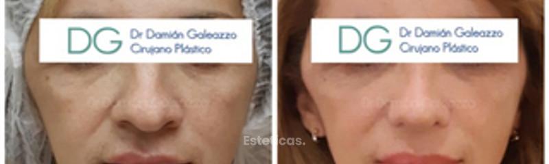 Afinamiento del ancho nasal