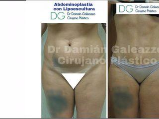 Lipoescultura con abdominoplastia