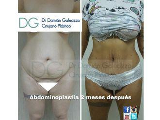 Abdominoplastía - 631186