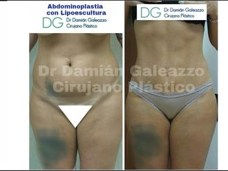 Abdominoplastía - 631187