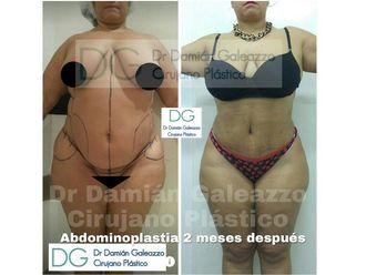 Abdominoplastía - 631426