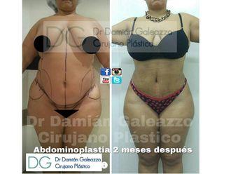 Abdominoplastía - 632455