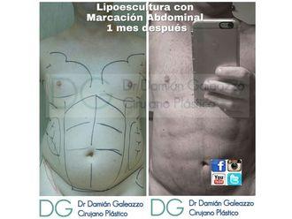 Lipoescultura - 633458