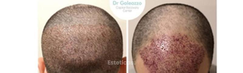 Implante Capilar S/cicatriz