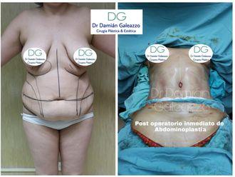 Abdominoplastía - 634803