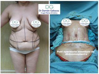 Abdominoplastia Dr galeazzo