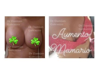 Aumento mamas - 635670