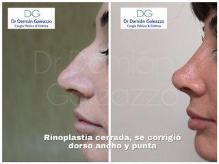 Rinoplastia cerrada. Dr Galeazzo