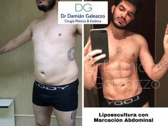Lipoescultura - 639629