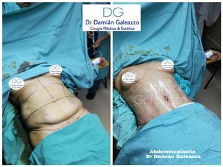 Abdominoplastia cn lipoescultura Dr galeazzo