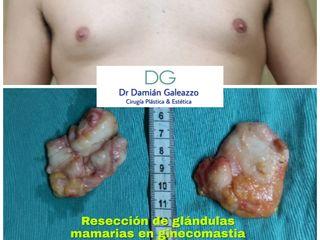 Ginecomastia resección glándulas
