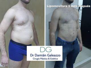Lipoescultura Dr Galeazzo