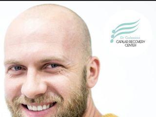 Recuperación e implante capilar