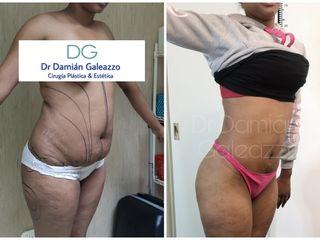 Abdominoplastia 2 meses después