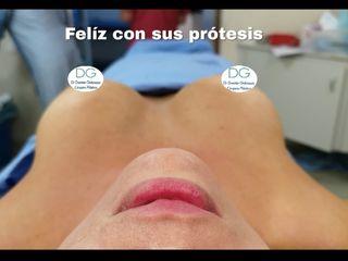 Aumento mamario . Dr Galeazzo