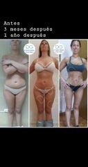 Liposucción a los 3 meses y al año