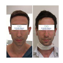 Cirugía de Orejas prominentes - Dr Damian Galeazzo