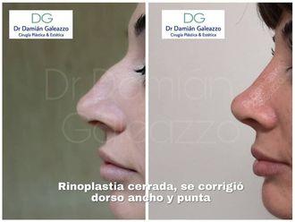 Rinoplastia-662792