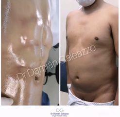 Lipoescultura HD con marcación abdominal. Dr Damian galeazzo