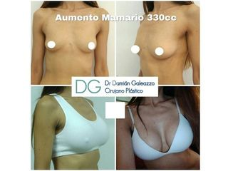 Aumento mamario - Dr. Damián Galeazzo