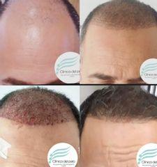 Implante pelo por pelo - Dr. Damián Galeazzo
