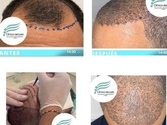 Implante capilar-698284