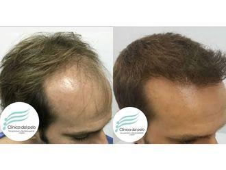 Implante capilar-698959
