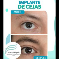 Implante de cejas - Dr. Damián Galeazzo