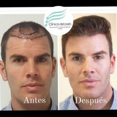 Implante Capilar - Dr. Damián Galeazzo