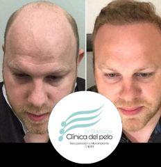 Implante Capilar antes y después