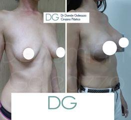 Aumento mamas - Dr. Damián Galeazzo