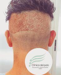 Implante Capilar Zona donante - Dr. Damián Galeazzo