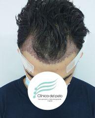 Implante Capilar recién  finalizado - Dr. Damián Galeazzo