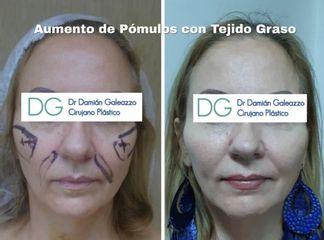 Cirugía de aumento pómulos. Dr Galeazzo