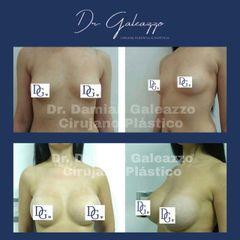 Aumento mamario. Antes y Después. Dr Galeazzo