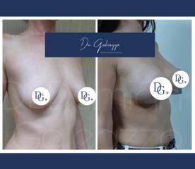 Aumento mamario. Dr Damian Galeazzo